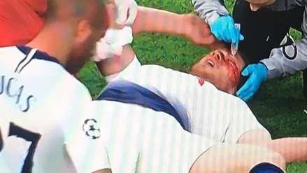 Jan Vertonghen sufrió una descompensación en el Tottenham vs. Ajax tras recibir un golpe en la cara