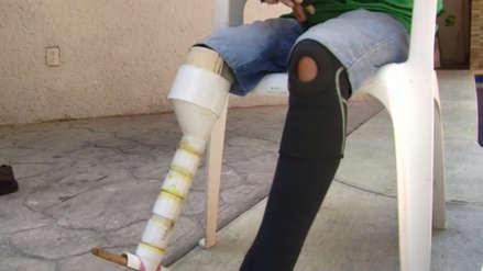 Un hombre logró construirse su propia prótesis de pierna con solo 4 dólares [VIDEO]