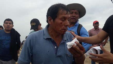 Paro de agricultores | Cuatro agricultores heridos durante enfrentamientos con la policía en Chiclayo