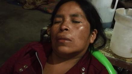 Delincuentes arrojan gasolina en rostro de mujer para robarle en su vivienda
