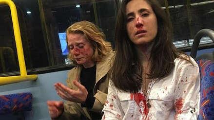 Liberan a los cinco detenidos tras brutal agresión a pareja de lesbianas en Londres