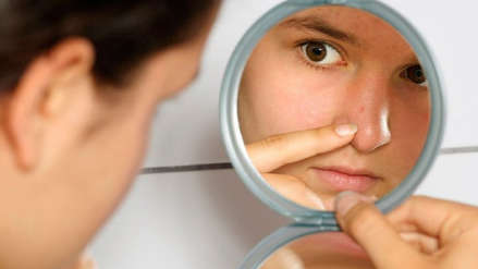 El ABC del acné: Todo lo que debes saber sobre este trastorno de la piel
