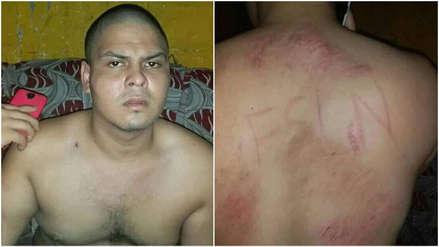 Nicaragua   Opositor denunció que civiles armados lo marcaron y lo violaron durante secuestro