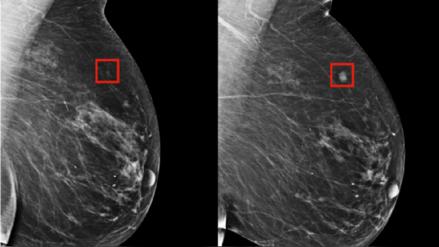 Crean inteligencia artificial que predice el cáncer de mama hasta con cinco años de anticipación