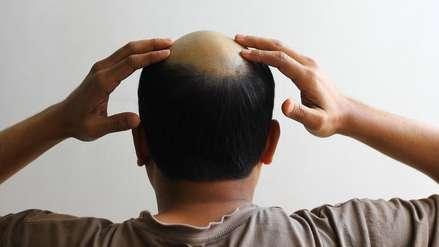 ¿La cura contra la calvicie? Científicos crean cabello de apariencia natural que crece en la piel