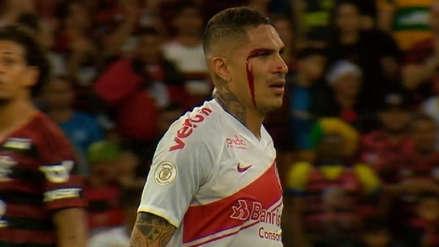 ¡Terminó sangrando! Paolo Guerrero fue expulsado del partido entre Internacional y Flamengo