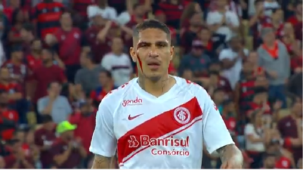 Paolo Guerrero: el impresionante corte que sufrió el delantero del Inter de Porto Alegre