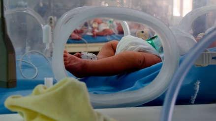 El caso del bebé que nació sin rostro en Portugal destapa el currículum de horror de un médico