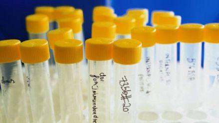 Fertilidad asistida: Todo lo que debe saber sobre el banco de espermatozoides