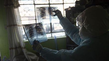 La desnutrición empeora el pronóstico de los pacientes con coronavirus en Perú