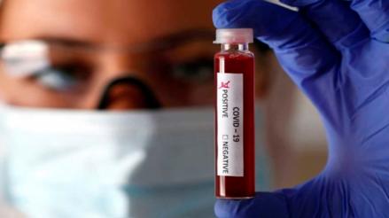 Conoce más sobre el estudio con plasma convaleciente, tras aprobación del INS