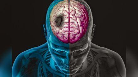 Pacientes de COVID-19 tienen más posibilidades de presentar derrames cerebrales