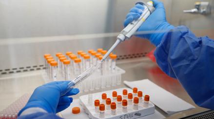 Estudio preliminar indica que anticuerpos contra la COVID-19 desaparecerían a los 3 meses