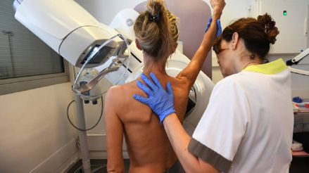 Cáncer de mama: La importancia de la detección temprana en diagnósticos de neoplasias