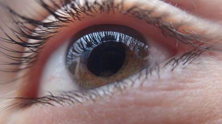 Glaucoma: la principal causa de ceguera irreversible en el mundo