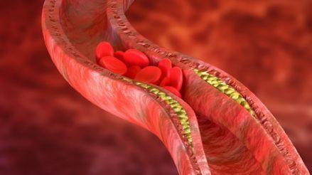 Colesterol: Mitos y verdades sobre este lípido que se encuentra en nuestro cuerpo