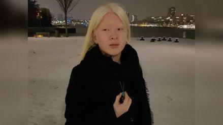 Sus padres la abandonaron por considerar el albinismo una maldición: hoy es modelo de Vogue