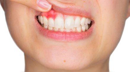 ¿Cómo afecta el consumo de gaseosas en la salud bucal?
