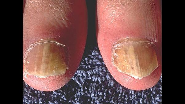 gruesas uñas amarillas y diabetes