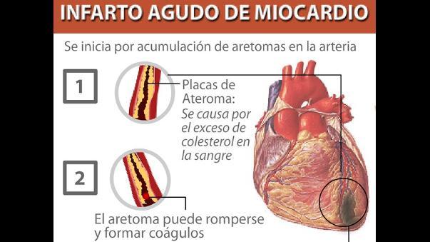 Buscan desarrollar partes del corazón con células madre | RPP Noticias
