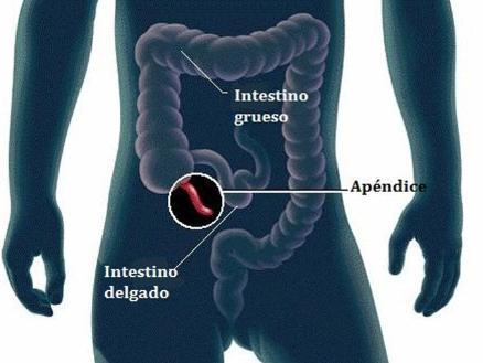 Apendicitis es más frecuente en niños