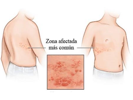 Enfermedades de la piel herpes fotos