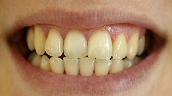 tengo los dientes amarillos qué estoy haciendo mal rpp noticias