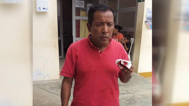Walter Heredia Martínez conductor afectado