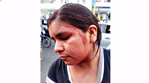 Trujillo: hieren a vendedora ambulante que reclamó por polvareda