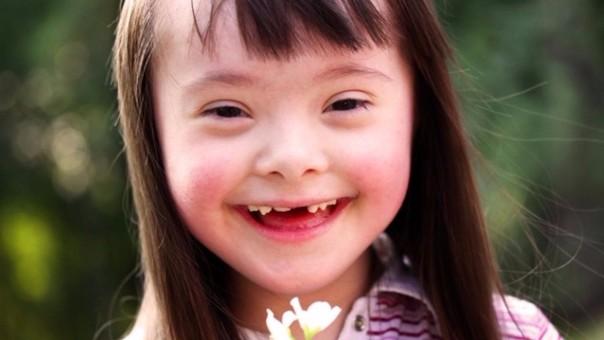Una de cada 1.000 personas presentan el Síndrome de Down