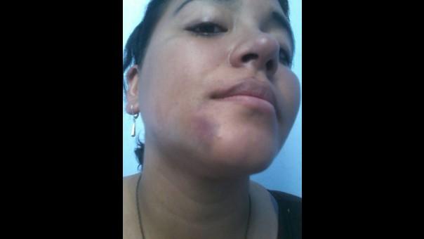 Mujer agredida.