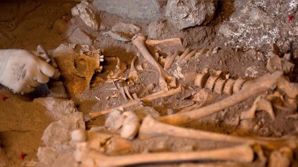 Cirugía cerebral hace 3,000 años