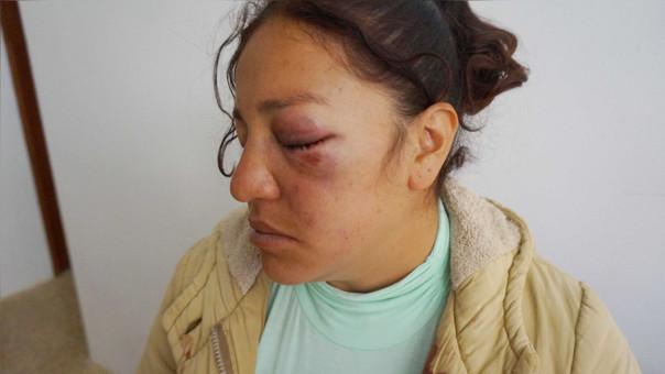 Margarita Lozada Salazar muestra la golpiza que recibió de parte de su conviviente