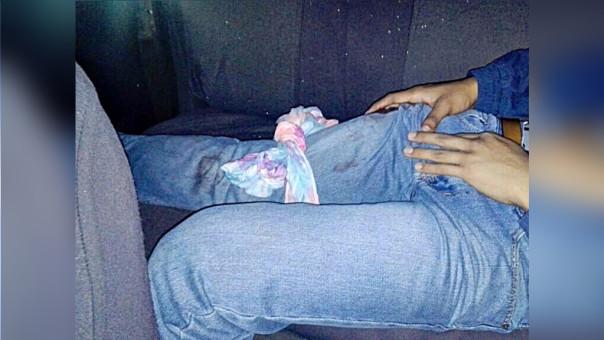 Trujillo: joven se enfrenta a hampones y termina baleado