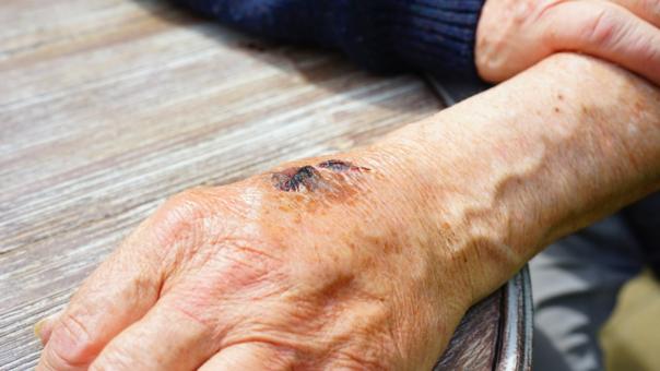 Por qué las heridas en los ancianos tardan más en curarse?  |  RPP ...