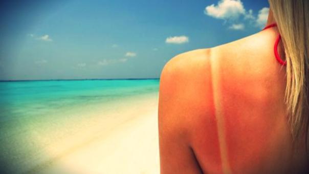 Una salida el fin de semana puede resultar en dolorosas quemaduras.