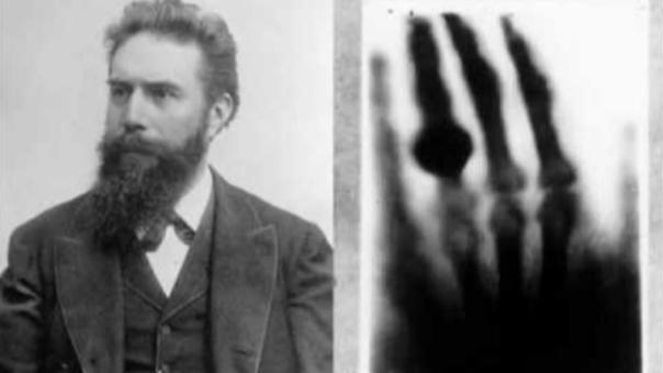 Wilhelm Röntgen tomó la primera radiografía a su mujer Anna Bertha en 1897.