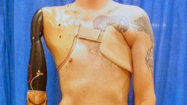 Así es la prótesis desarrollada por el científico Imperial College London.