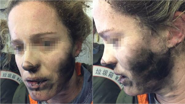 Mujer sufrió quemaduras por el incidente.