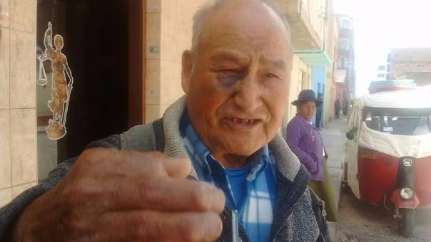 Julio Álvarez Cahuana todavía tiene las marcas de la violencia en su cara