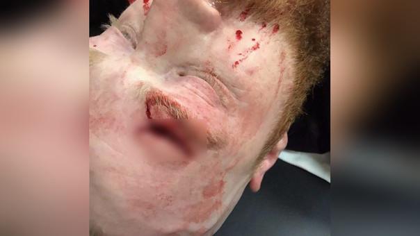 Las lesiones en la cabeza son consideradas graves por la WWE desde los incidentes con Chris Benoit.