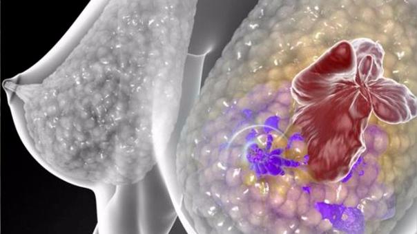 La metástasis es la fase más avanzada del cáncer, cuando las células malignas se replican en otros órganos.
