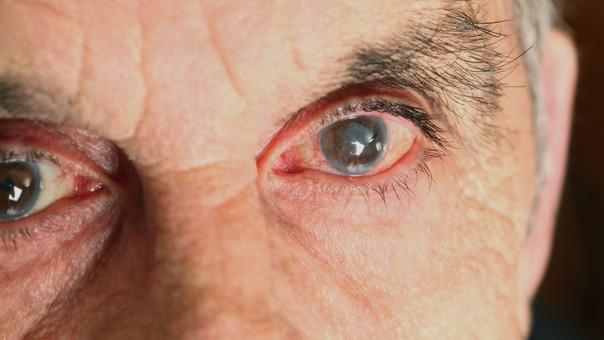 diabetes presión ocular
