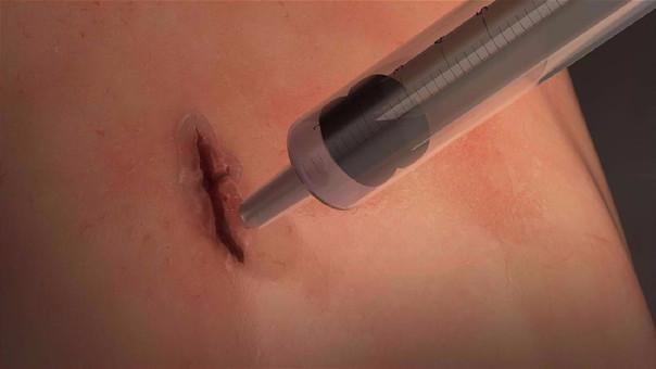 MeTro solo requiere un baño de luz ultravioleta para solidificarse sobre una herida.