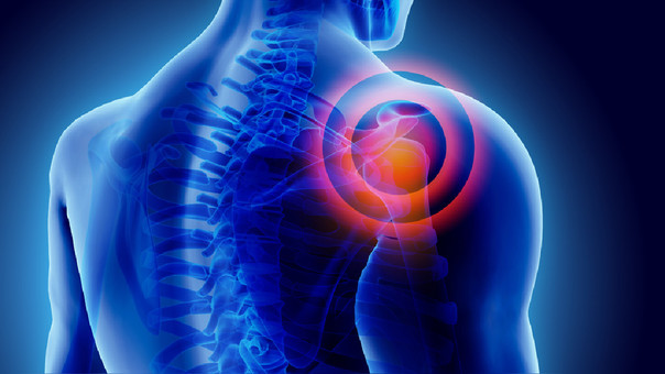 La artritis más común es la artrosis, asociada generalmente a la edad.