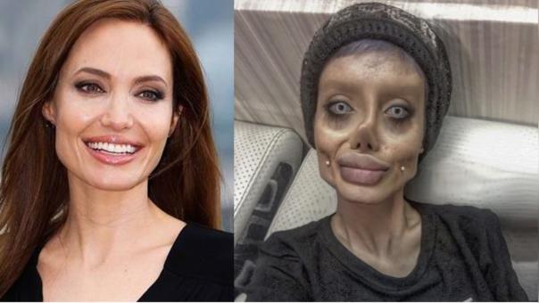 Se sometió a 50 cirugías para verse como Angelina Jolie