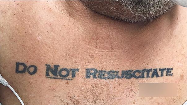 Un tatuaje puso en conflicto ético los médicos en Estados Unidos