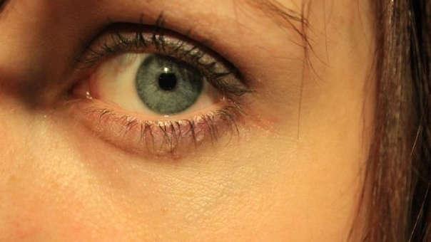 Porque se hinchan los ojos por la manana