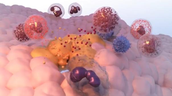 Los linfocitos son los que se encargan de atacar a las células cancerígenas en la inmunoterapia.