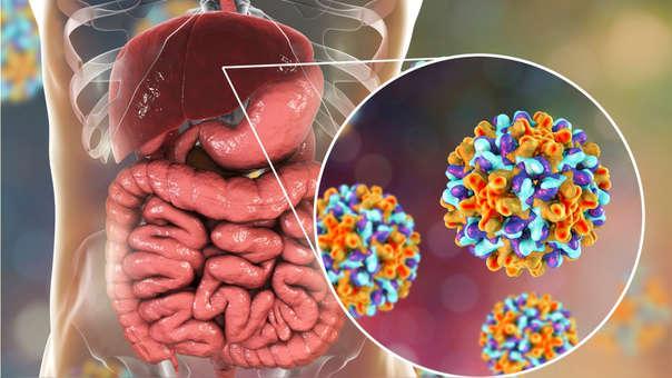 Hepatitis B: ¿Cómo identificar las señales de alerta de esta ...